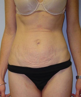 46 Year Old Female Treated with Mini Tummy Tuck before 1475505