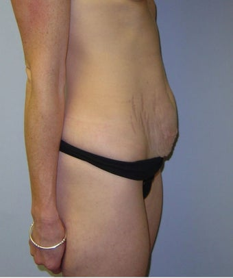46 Year Old Female Treated with Mini Tummy Tuck 1475505