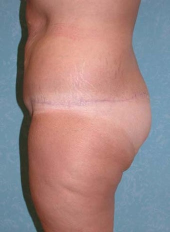 Circumferential Body Lift with Buttock Augmentation 856899
