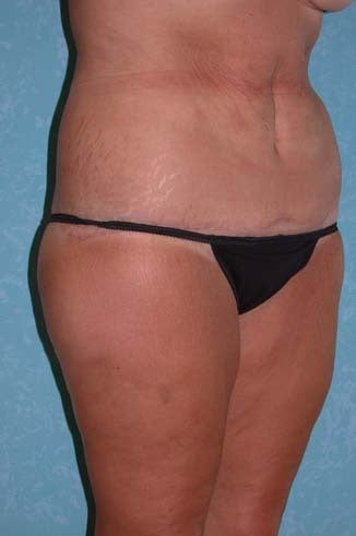 Circumferential Body Lift with Buttock Augmentation after 856899