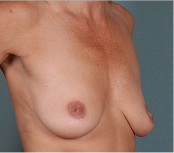 Breast Lift before 1382463