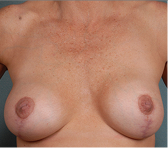 Breast Lift 1382463
