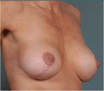 Breast Lift after 1382463