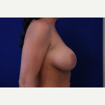25-34 year old woman treated with Breast Implants after 3301222