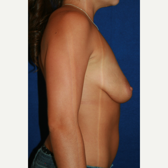 25-34 year old woman treated with Breast Implants before 3301222