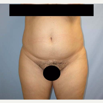 35-44 year old woman treated with Tummy Tuck before 2802098