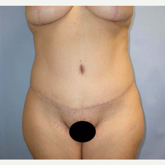 35-44 year old woman treated with Tummy Tuck after 2802098