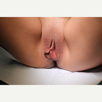 Patient before and three months after MACIE labiaplasty including labia major fat grafting before 3465775