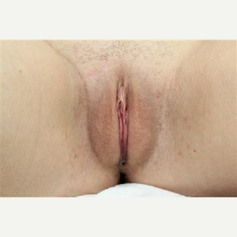 Patient before and three months after MACIE labiaplasty including labia major fat grafting after 3465775
