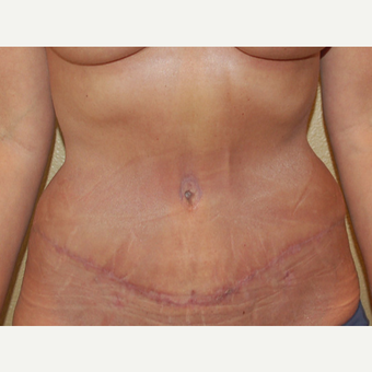 45-54 year old woman treated with Mommy Makeover after 3365607