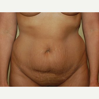 45-54 year old woman treated with Mommy Makeover before 3365607