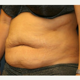 35-44 year old woman treated with Tummy Tuck before 2120891