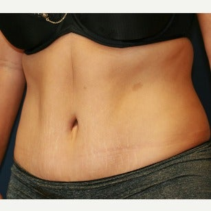 35-44 year old woman treated with Tummy Tuck after 2120891