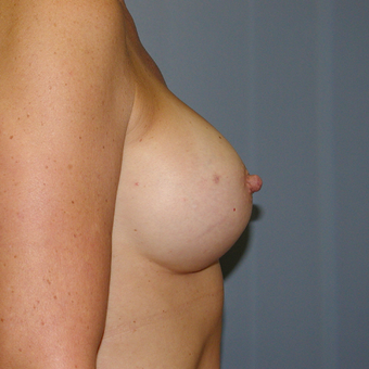51 year old woman treated with Breast Augmentation after 3207305