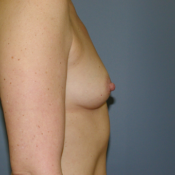 51 year old woman treated with Breast Augmentation before 3207305