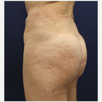 55-64 year old woman treated with Fat Transfer to her Buttocks after 3147524