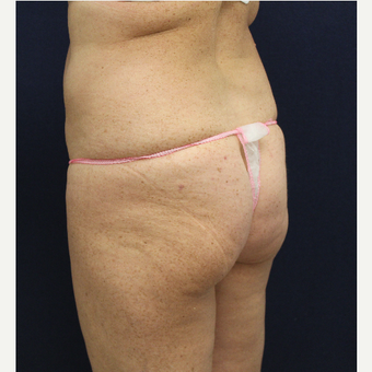 55-64 year old woman treated with Fat Transfer to her Buttocks before 3147524