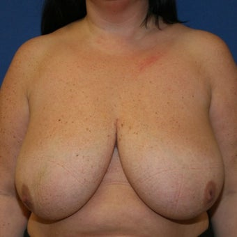 Breast Reduction before 1755898