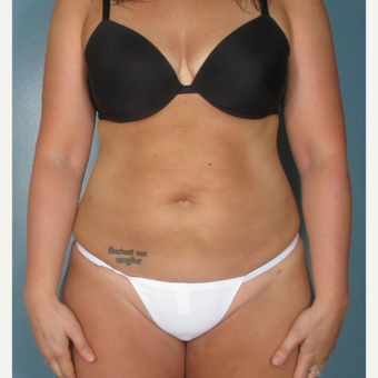 25-34 year old woman treated with Smart Lipo after 3237027