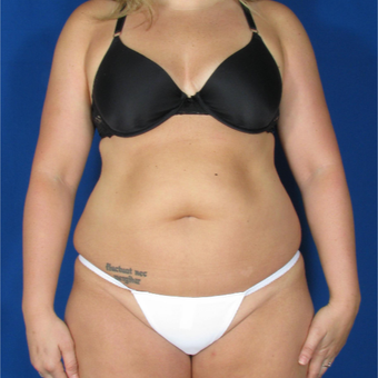 25-34 year old woman treated with Smart Lipo before 3237027