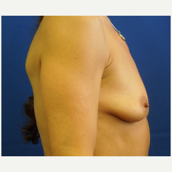 55-64 year old woman treated with Breast Augmentation before 3333063