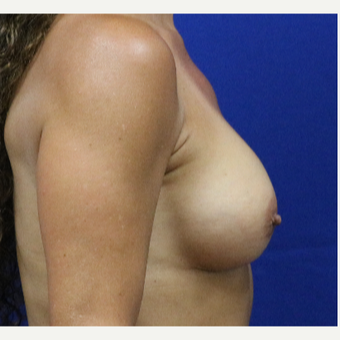 55-64 year old woman treated with Breast Augmentation after 3333063