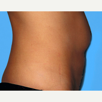 Tummy Tuck before 3813560