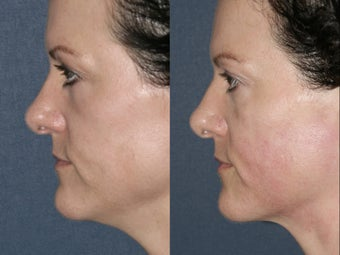 Ultherapy for under chin in 43 year old female before 657823