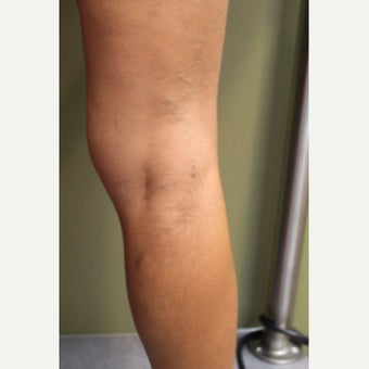35-44 year old woman treated with Sclerotherapy after 2081500