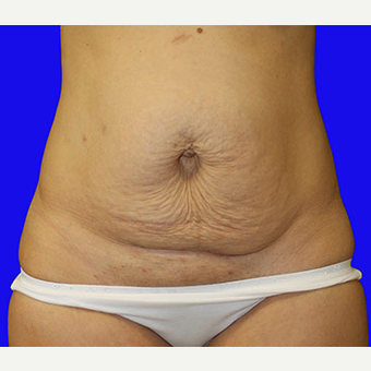 25-34 year old woman treated with Tummy Tuck before 3519930