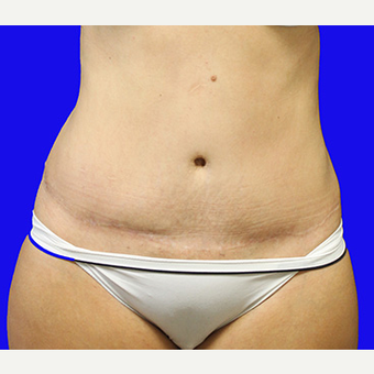 25-34 year old woman treated with Tummy Tuck after 3519930