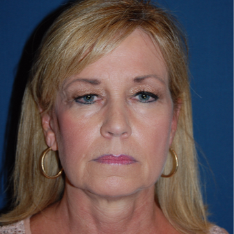 55-64 year old woman treated with Facelift before 3659150