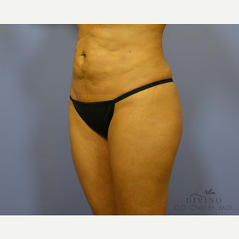 35-44 year old woman treated with Liposuction before 3391539