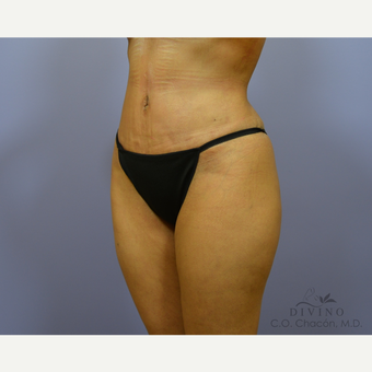 35-44 year old woman treated with Liposuction after 3391539