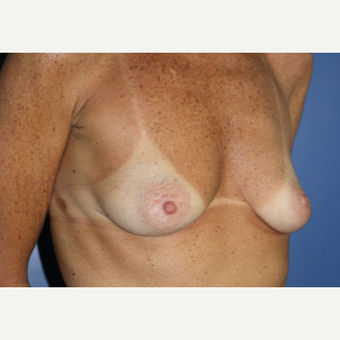 55-64 year old woman treated with Breast Augmentation before 3695016