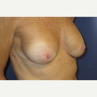55-64 year old woman treated with Breast Augmentation after 3695016
