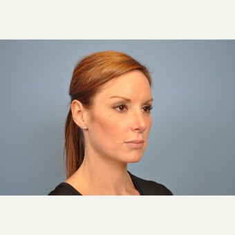 25-34 year old woman treated with Rhinoplasty after 1576226