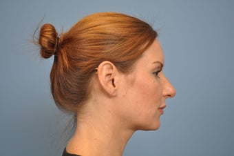 25-34 year old woman treated with Rhinoplasty 1576226
