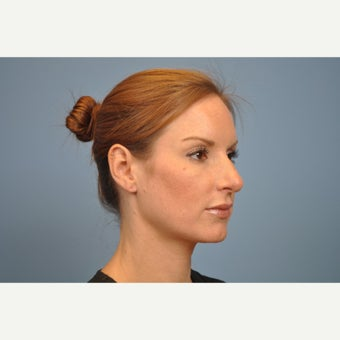 25-34 year old woman treated with Rhinoplasty before 1576226