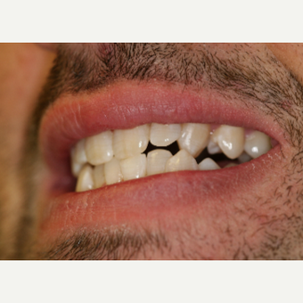 25-34 year old man treated with Porcelain Veneers before 3087506