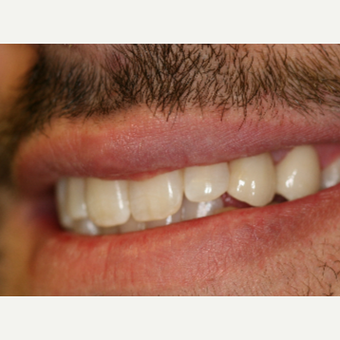 25-34 year old man treated with Porcelain Veneers after 3087506