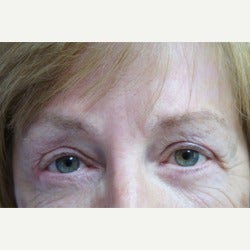 65-74 year old woman treated with Forehead Lift