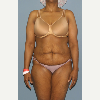 45-54 year old woman treated with Tummy Tuck before 3559079