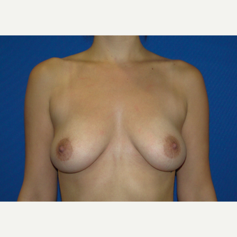 350 cc Silicone Breast Implants before 3666106