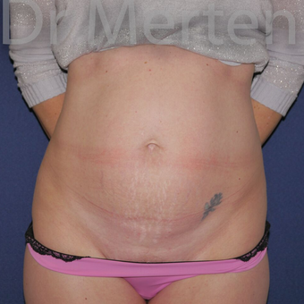 Tummy Tuck before 3599604