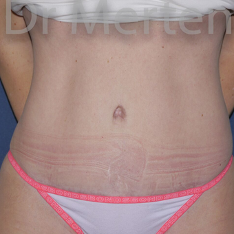 Tummy Tuck after 3599604