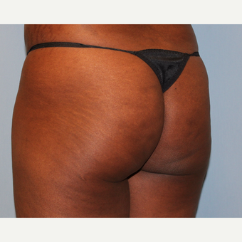 45-54 year old woman treated with Brazilian Butt Lift before 3808981