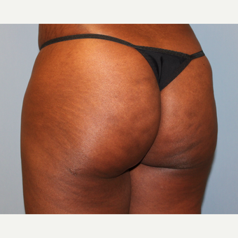 45-54 year old woman treated with Brazilian Butt Lift after 3808981