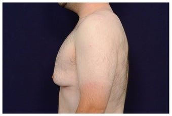 Gynecomastia before 1457248