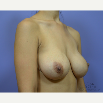 25-34 year old woman treated with Breast Augmentation before 3386436
